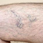Leg of a man with varicose veins and capillaries